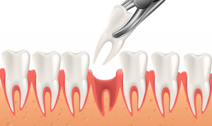 An Overview On Tooth Extraction Procedure